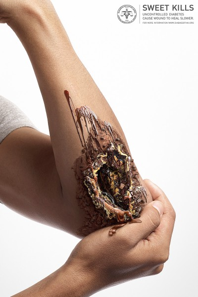 Sweet Kills - Clever Ads warns us for Diabetes with Sweets, see them at Ateriet
